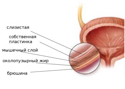 Слои стенок мочевого пузыря