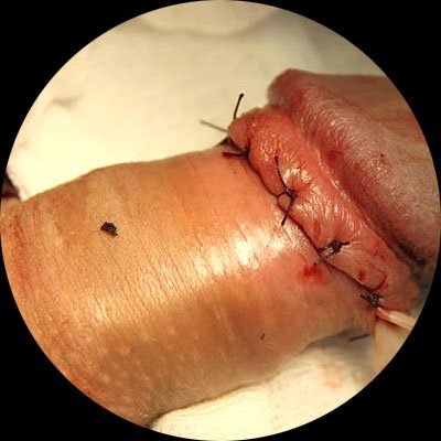 Окончательный вид после операции.