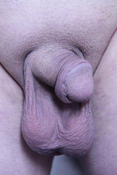Выбухание по правому контуру полового члена спустя 2 недели после травмы. Искривление полового члена влево.