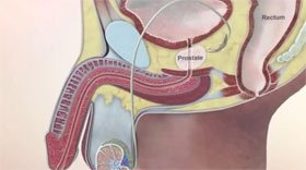 Рис.1 Простата или предстательная железа.