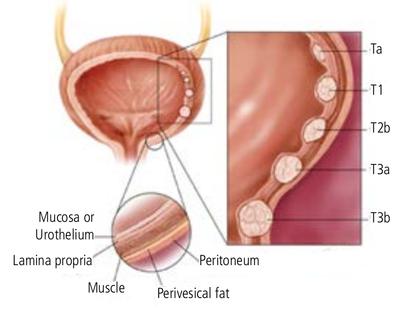 Хроническая простата что такое