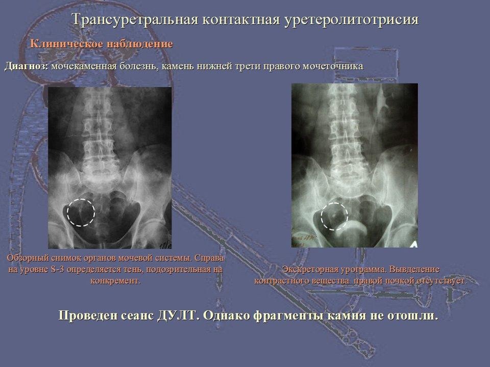 Уретероскопия фото